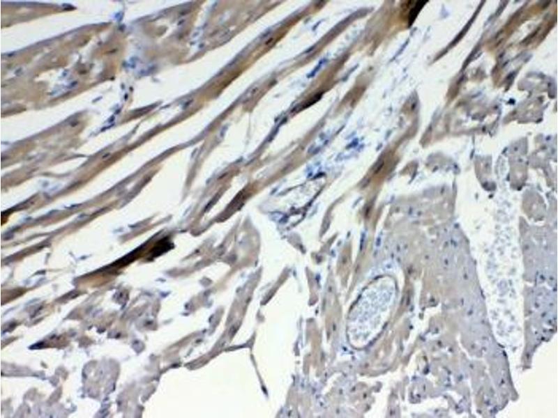 Immunohistochemistry (IHC) image for anti-Frizzled Family Receptor 4 (FZD4) antibody (ABIN5708436)