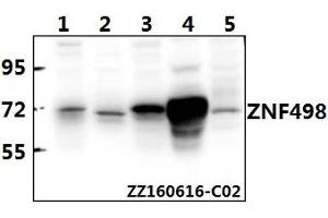 Image no. 1 for anti-Zinc Finger and SCAN Domain Containing 25 (ZSCAN25) (AA 115-159) antibody (ABIN6711143)