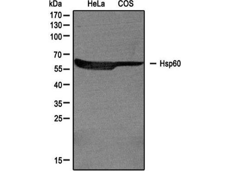 Western Blotting (WB) image for anti-Heat Shock 60kDa Protein 1 (Chaperonin) (HSPD1) (AA 70-150), (Internal Region) antibody (ABIN4320148)