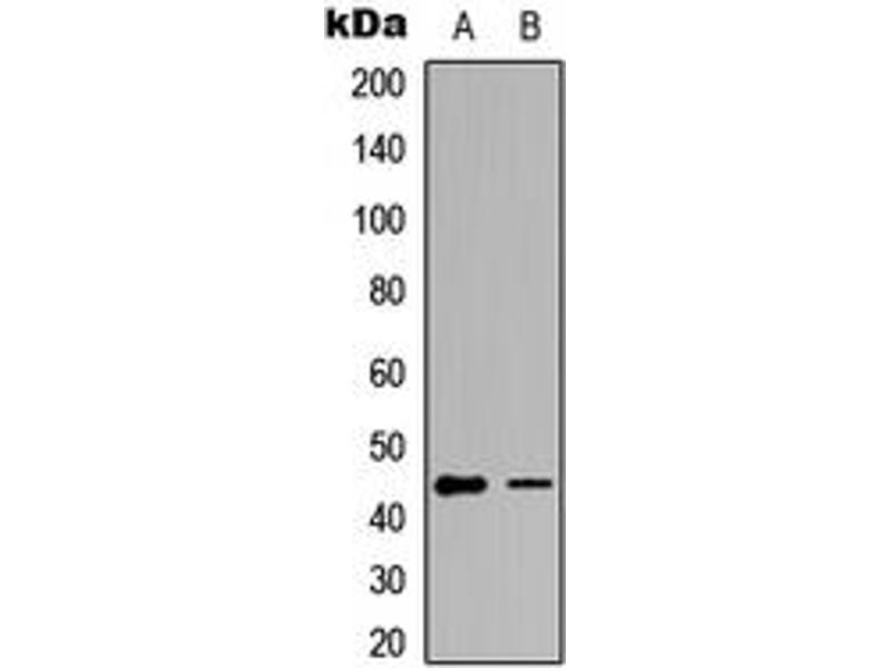 Western Blotting (WB) image for anti-GATA Binding Protein 1 (Globin Transcription Factor 1) (GATA1) (Center), (pSer142) antibody (KLH) (ABIN2972785)
