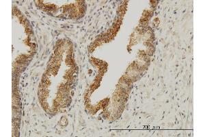 Image no. 4 for anti-Achalasia, Adrenocortical Insufficiency, Alacrimia (AAAS) (AA 1-100) antibody (ABIN563541)
