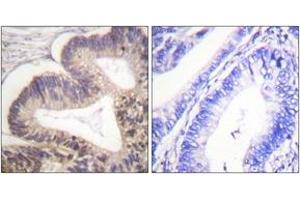 Image no. 2 for anti-P21-Activated Kinase 2 (PAK2) (AA 5-54), (pSer20) antibody (ABIN1531457)