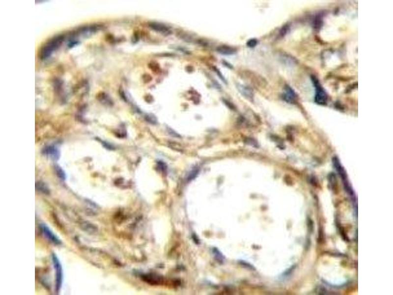 Immunohistochemistry (IHC) image for anti-Mitogen-Activated Protein Kinase Kinase Kinase 12 (MAP3K12) antibody (ABIN3031847)