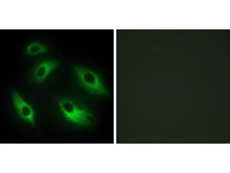 Image no. 2 for anti-EPH Receptor B6 (EPHB6) antibody (ABIN1576322)