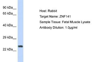 Image no. 1 for anti-Zinc Finger Protein 141 (ZNF141) (N-Term) antibody (ABIN2776402)