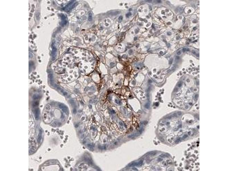 Image no. 1 for anti-Coagulation Factor III (thromboplastin, Tissue Factor) (F3) antibody (ABIN5649946)