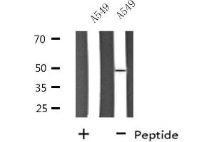 Image no. 1 for anti-Solute Carrier Family 30 (Zinc Transporter), Member 4 (SLC30A4) antibody (ABIN6258421)