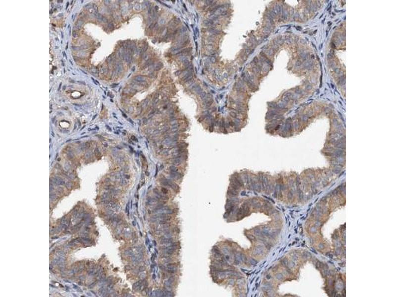 Immunohistochemistry (Paraffin-embedded Sections) (IHC (p)) image for anti-TAP Binding Protein-Like (TAPBPL) antibody (ABIN4357824)