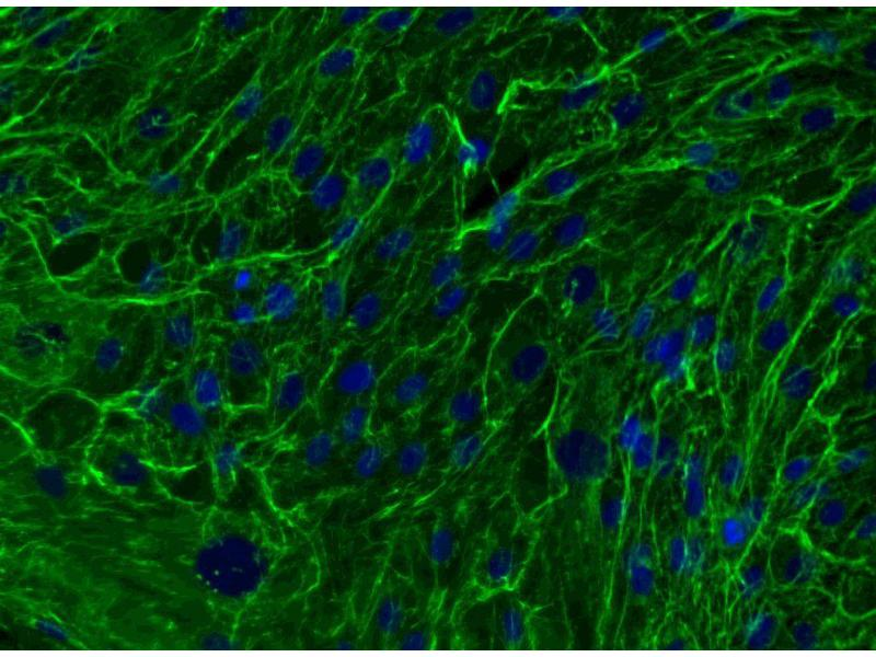 Immunofluorescence (IF) image for anti-Fibronectin antibody (Fibronectin 1) (ABIN967729)
