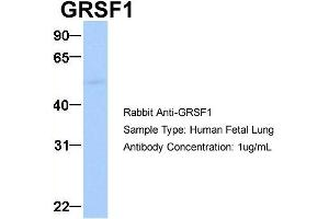 Image no. 11 for anti-G-Rich RNA Sequence Binding Factor 1 (GRSF1) (Middle Region) antibody (ABIN2778788)