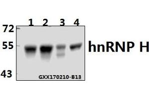 Image no. 1 for anti-Heterogeneous Nuclear Ribonucleoprotein H1 (H) (HNRNPH1) (AA 180-230) antibody (ABIN6712613)