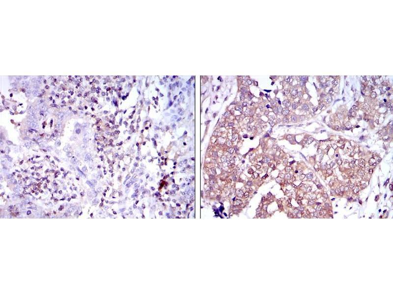 Immunohistochemistry (IHC) image for anti-Nuclear Factor of kappa Light Polypeptide Gene Enhancer in B-Cells 1 (NFKB1) antibody (ABIN1108443)