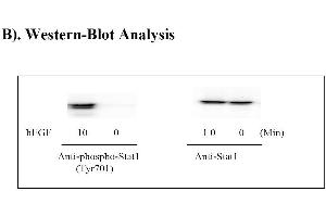 Image no. 7 for Signal Transducer and Activator of Transcription 1, 91kDa (STAT1) ELISA Kit (ABIN625244)