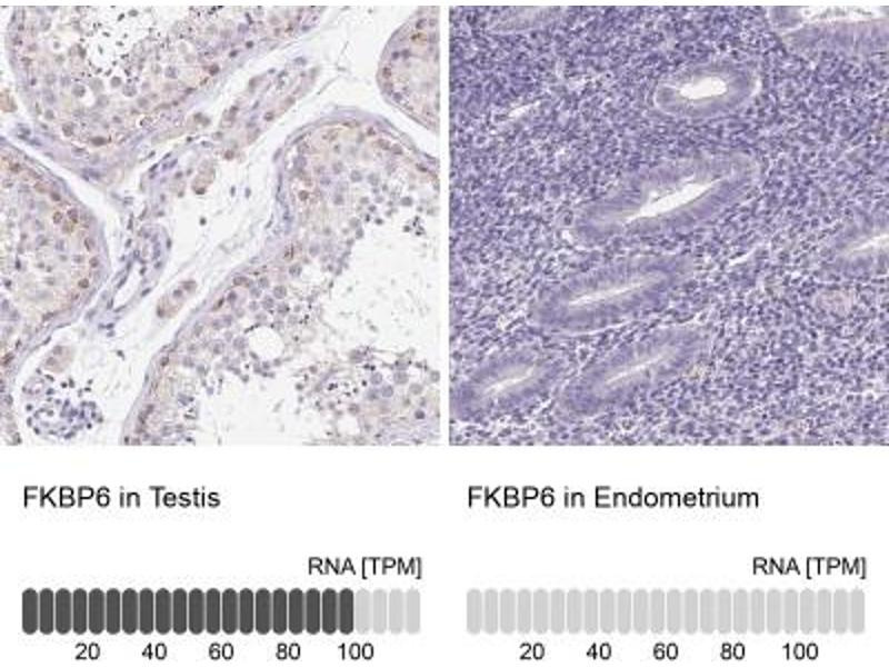 Immunohistochemistry (Paraffin-embedded Sections) (IHC (p)) image for anti-FK506 Binding Protein 6, 36kDa (FKBP6) antibody (ABIN4312061)