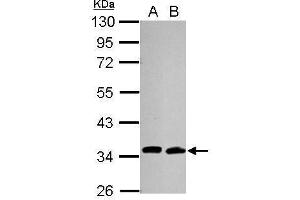 anti-Cell Division Cycle 34 Homolog (S. Cerevisiae) (CDC34) antibody (3)