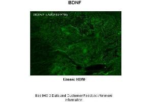 Immunohistochemistry (IHC) image for anti-Brain-Derived Neurotrophic Factor (BDNF) (Middle Region) antibody (ABIN2777093)
