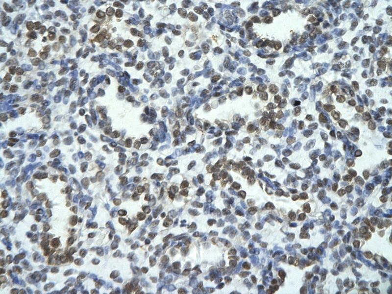 Immunohistochemistry (IHC) image for anti-TRIO and F-Actin Binding Protein (TRIOBP) (Middle Region) antibody (ABIN2775973)