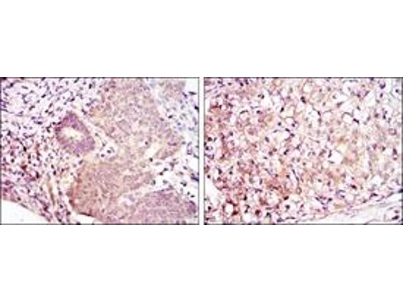 Immunohistochemistry (IHC) image for anti-MAP2K6 antibody (Mitogen-Activated Protein Kinase Kinase 6) (ABIN1108127)