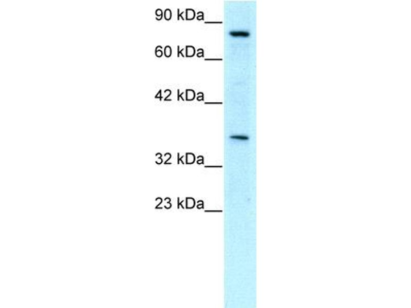 Western Blotting (WB) image for anti-Neuronal PAS Domain Protein 1 (NPAS1) (C-Term) antibody (ABIN182486)