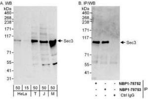 Immunoprecipitation (IP) image for anti-Exocyst Complex Component 1 (EXOC1) (AA 100-150) antibody (ABIN4352410)