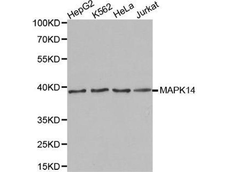 Western Blotting (WB) image for anti-MAPK14 antibody (Mitogen-Activated Protein Kinase 14) (ABIN3023294)