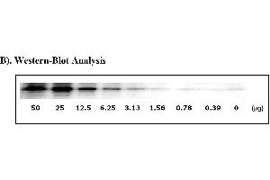 Image no. 6 for Signal Transducer and Activator of Transcription 3 (Acute-Phase Response Factor) (STAT3) ELISA Kit (ABIN625245)