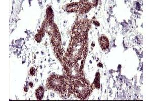 Immunohistochemistry (IHC) image for anti-Ras Association (RalGDS/AF-6) Domain Family (N-terminal) Member 8 (RASSF8) antibody (ABIN4349462)