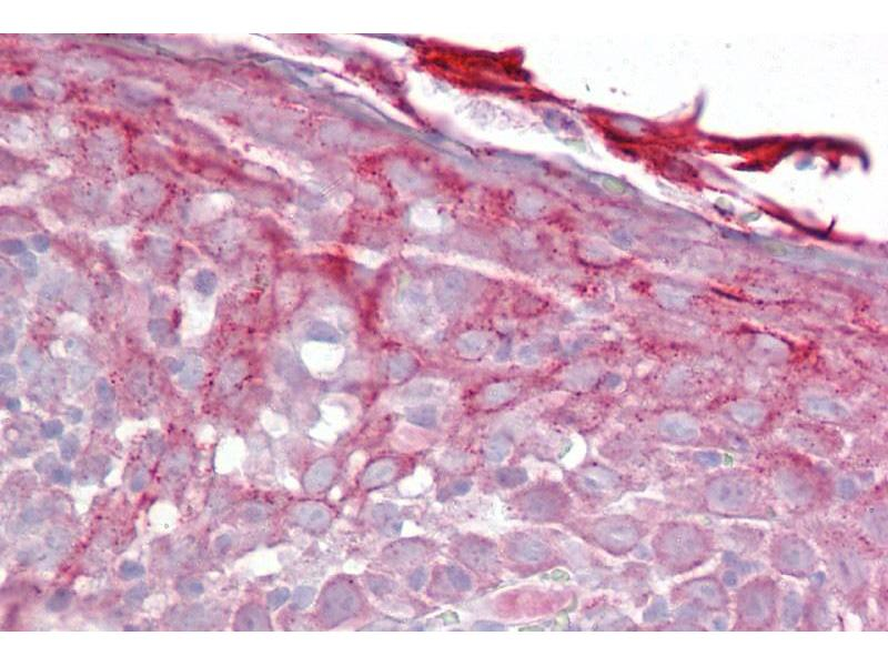 Immunohistochemistry (IHC) image for anti-Complement Factor P (CFP) (N-Term) antibody (ABIN2786671)
