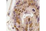 Immunohistochemistry (IHC) image for anti-Death Inducer-Obliterator 1 (DIDO1) antibody (ABIN439156)