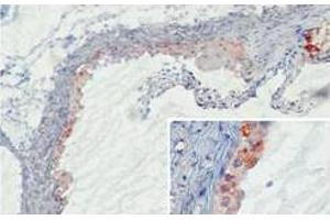 Immunohistochemistry (IHC) image for anti-MBL2 antibody (Mannose-Binding Lectin (Protein C) 2, Soluble) (ABIN1108115)