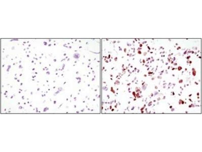 Immunohistochemistry (IHC) image for anti-Green Fluorescent Protein (GFP) antibody (ABIN1107357)