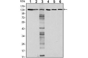 Western Blotting (WB) image for anti-E-cadherin antibody (Cadherin 1, Type 1, E-Cadherin (Epithelial)) (ABIN969037)