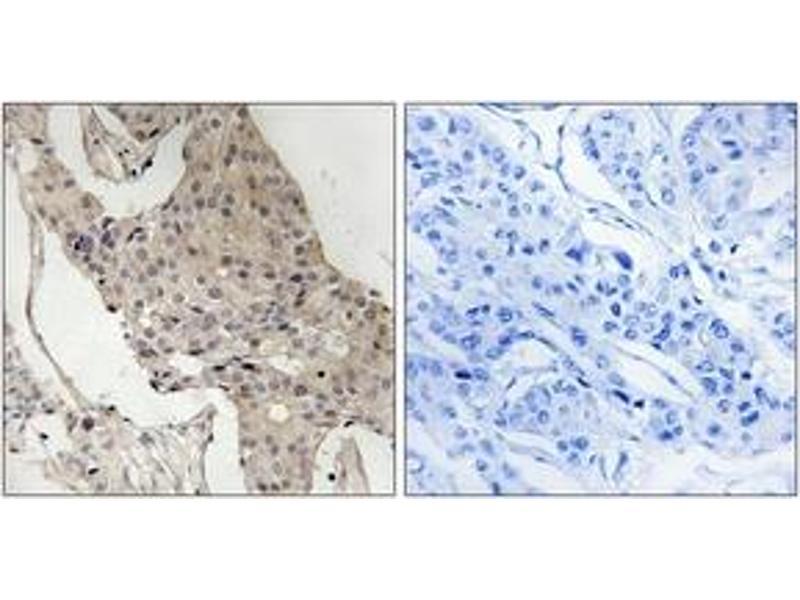 Immunohistochemistry (IHC) image for anti-GRB2-Associated Binding Protein 2 (GAB2) (AA 589-638), (pSer623) antibody (ABIN1532145)