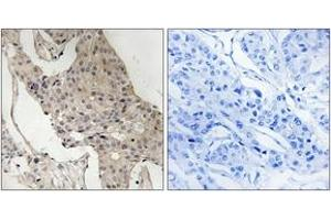 Immunohistochemistry (IHC) image for anti-GAB2 antibody (GRB2-Associated Binding Protein 2) (pSer623) (ABIN1532145)