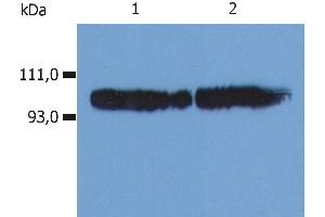 Image no. 2 for anti-Integrin beta 2 (ITGB2) antibody (FITC) (ABIN94008)