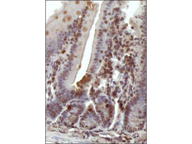 Immunohistochemistry (Paraffin-embedded Sections) (IHC (p)) image for anti-DNA (Cytosine-5)-Methyltransferase 1 (DNMT1) (N-Term) antibody (ABIN151732)