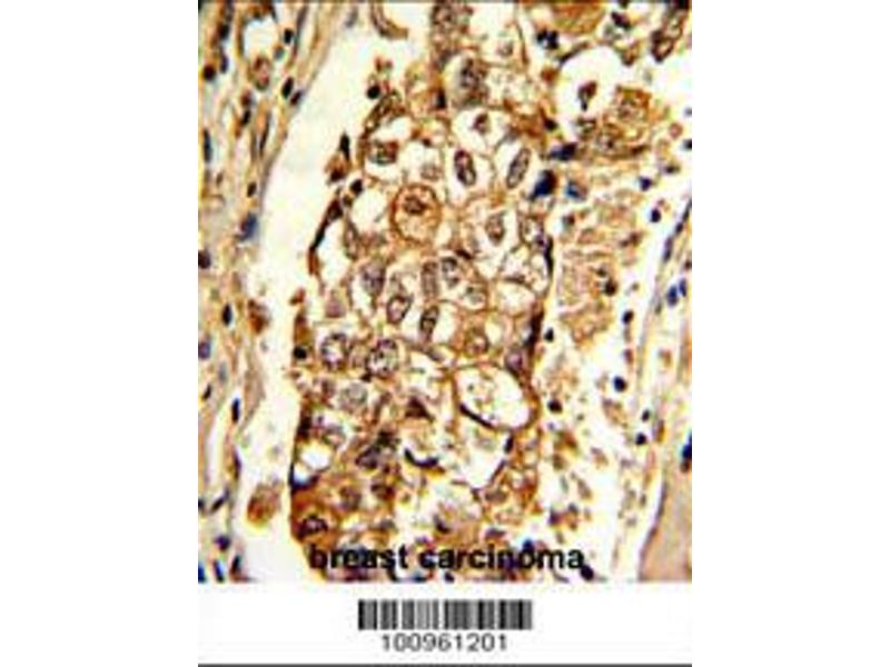 Immunohistochemistry (IHC) image for anti-MCL-1 antibody (Induced Myeloid Leukemia Cell Differentiation Protein Mcl-1) (AA 191-226) (ABIN388105)