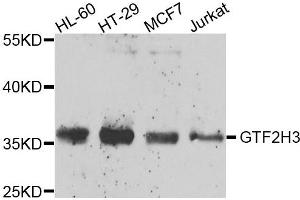 Image no. 1 for anti-General Transcription Factor IIH, Polypeptide 3, 34kD (GTF2H3) antibody (ABIN2562972)