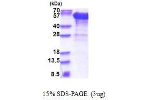 Image no. 1 for Dynactin 2 (p50) (DCTN2) (AA 1-401) protein (His tag) (ABIN5853385)