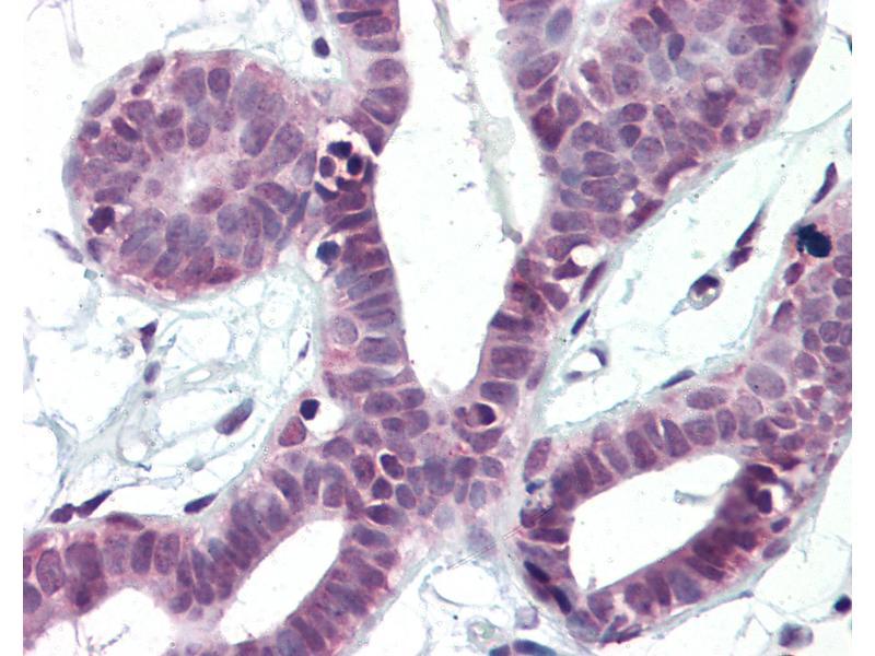 Immunohistochemistry (IHC) image for anti-GATA Binding Protein 4 (GATA4) antibody (ABIN364465)