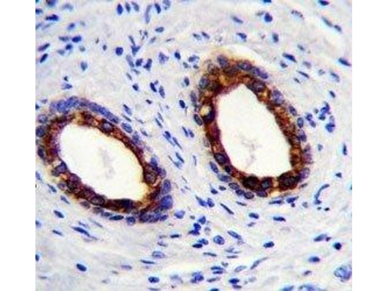 Immunohistochemistry (IHC) image for anti-Keratin 18 (KRT18) (AA 401-430) antibody (ABIN3031537)
