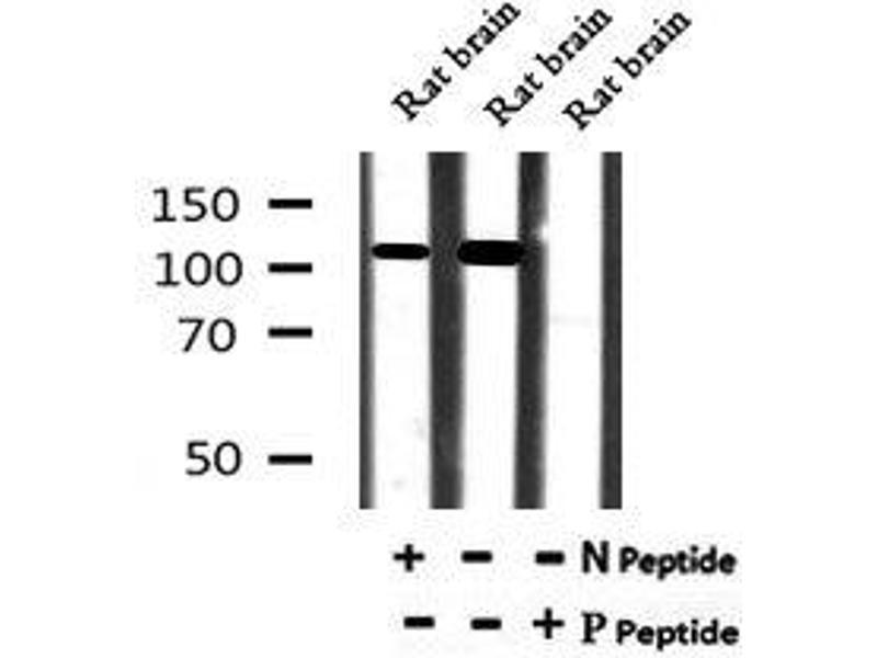 Image no. 2 for anti-ATP1 alpha1/Na+K+ ATPase1 (pTyr260) antibody (ABIN6269813)