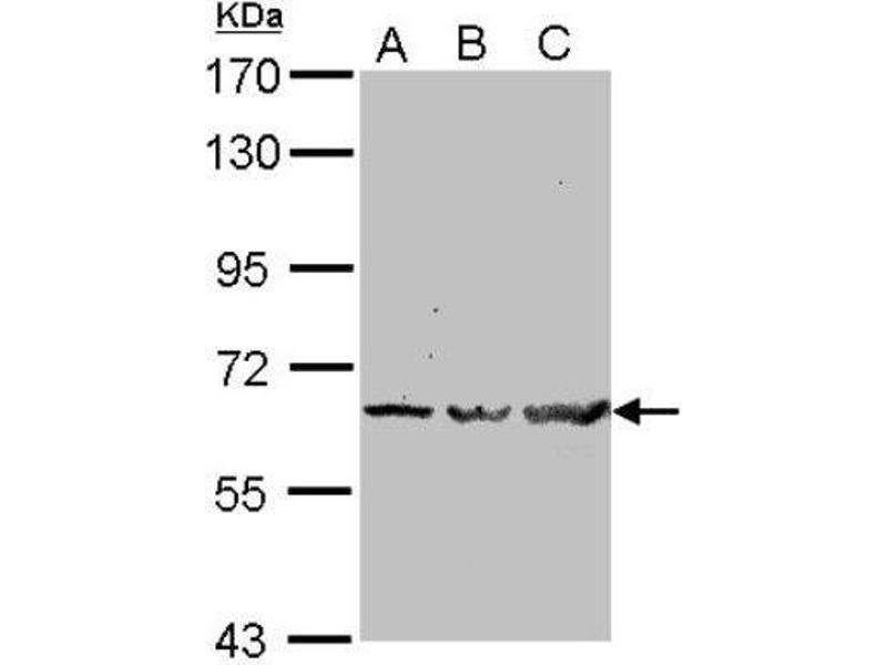 Western Blotting (WB) image for anti-TNF Receptor-Associated Factor 6 (TRAF6) (Center) antibody (ABIN443234)