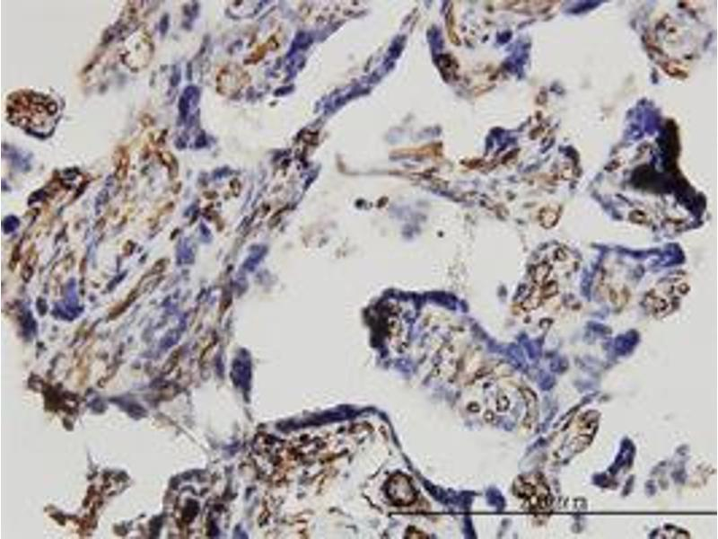 Immunohistochemistry (Formalin-fixed Paraffin-embedded Sections) (IHC (fp)) image for anti-Dickkopf Homolog 1 (Xenopus Laevis) (DKK1) (AA 1-266), (full length) antibody (ABIN524880)