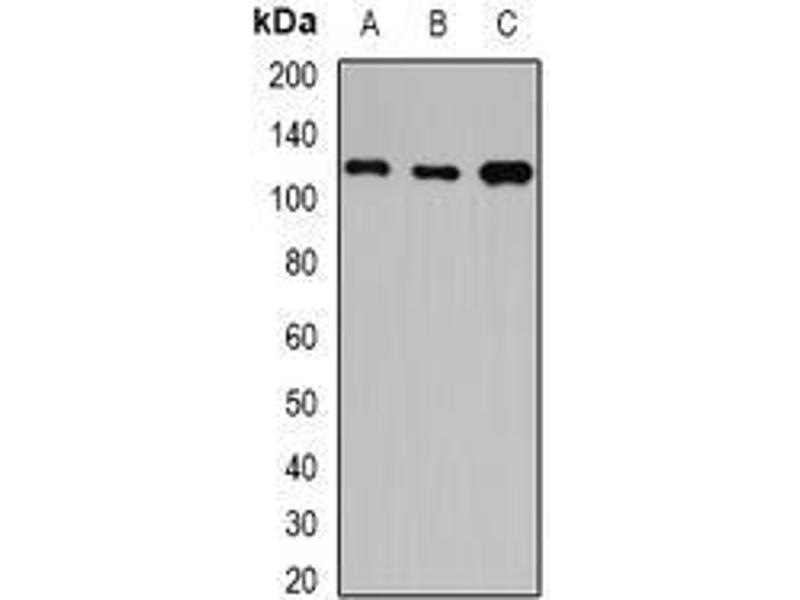 Western Blotting (WB) image for anti-Huntingtin Interacting Protein 1 (HIP1) (full length) antibody (ABIN6004698)