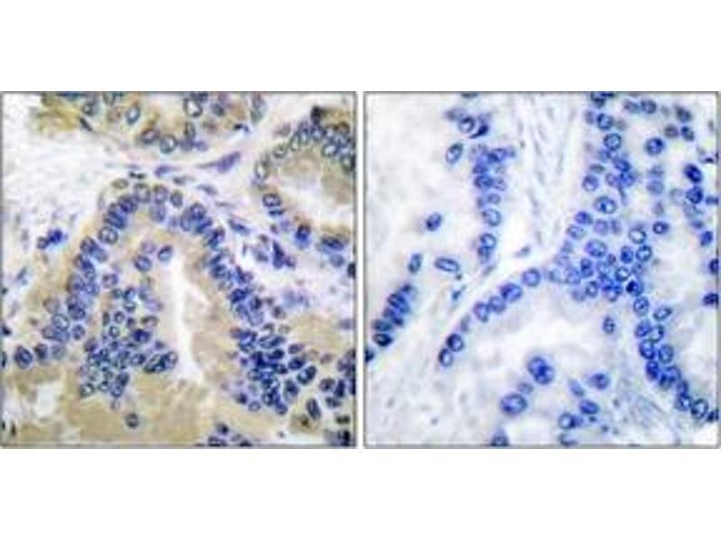 Immunohistochemistry (IHC) image for anti-Caspase 10 antibody (Caspase 10, Apoptosis-Related Cysteine Peptidase) (ABIN1533218)