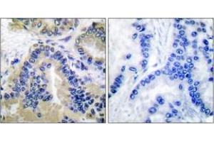 Immunohistochemistry (IHC) image for anti-Caspase 10, Apoptosis-Related Cysteine Peptidase (CASP10) (AA 430-479) antibody (ABIN1533218)