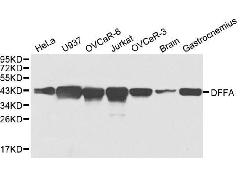 Western Blotting (WB) image for anti-DFFA antibody (DNA Fragmentation Factor, 45kDa, alpha Polypeptide) (ABIN2736635)