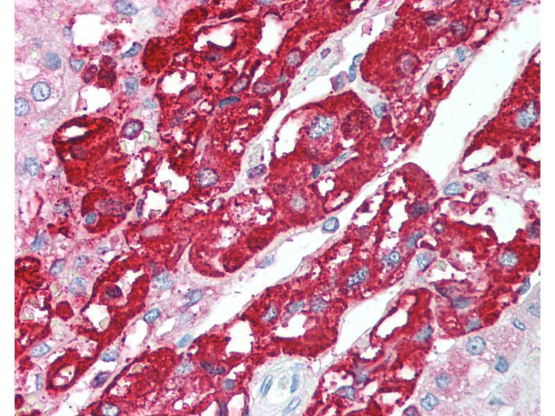Immunohistochemistry (IHC) image for anti-Chromogranin A (CHGA) (C-Term) antibody (ABIN214090)