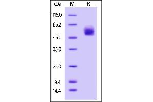 SDS-PAGE (SDS) image for Hemagglutinin (HA) (AA 19-338) (Active) protein (AVI tag,Biotin,His tag) (ABIN4949046)